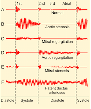 heart sounds image