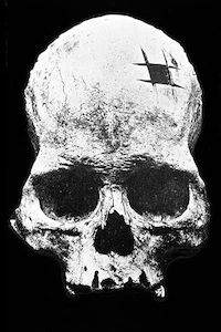 Skull demonstrating marks from Incan cranial surgery