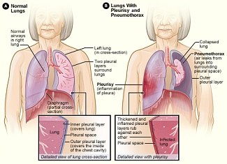 How to Study the Causes of Chronic Kidney Failure How to Study the Causes of Chronic Kidney Failure new images