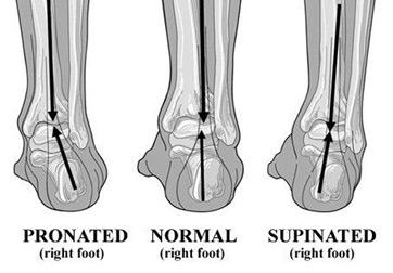 What is Pronation? - Definition, Causes & Treatment ... Ankle Pronation Surgery