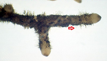 An image of rhizoids.