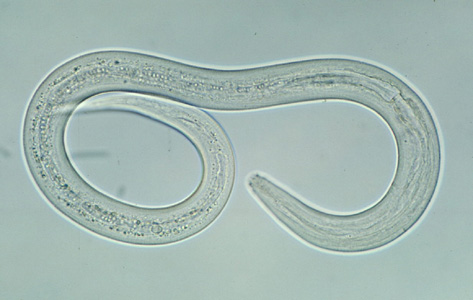 What Are Roundworms Types Examples Characteristics Video