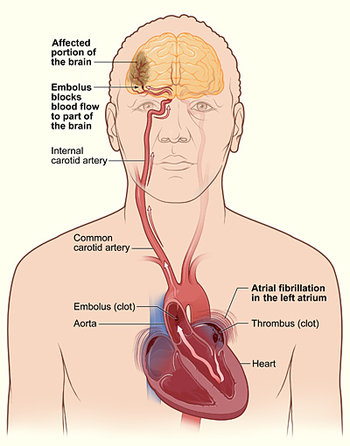 what is an embolic stroke? | study.com oxidative damage diagram #12