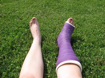 Long Leg Short Leg Casts Studycom