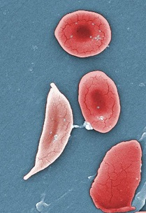 sickle cell red blood cell