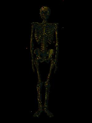 What Causes Degenerative Bone Disease? | Study com