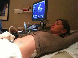Woman undergoing an ultrasound early in pregnancy