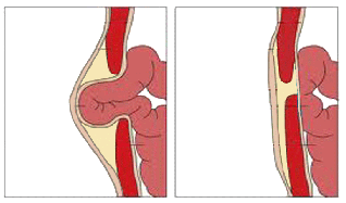 What is a Hernia? - Definition & Types | Study com