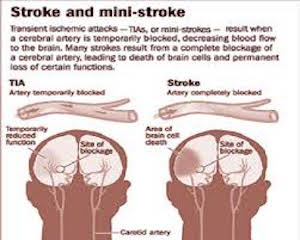 mild stroke causes and symptoms  What Is TIA (Mini-Stroke)? - Definition, Symptoms