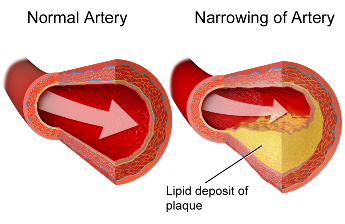 Artery Blocked by Fatty Tissue