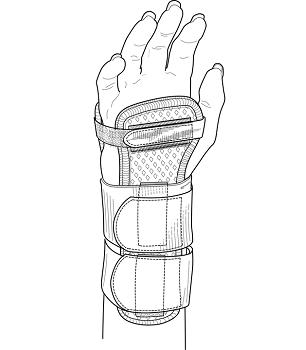 Forearm & Wrist Splints: Volar/Dorsal & Single Sugar-Tong | Study.com