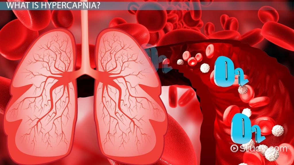 hypercapnia  definition  symptoms  u0026 treatment