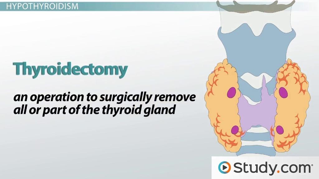 Thyroid Disorders: Hyperthyroidism, Hypothyroidism & Thyroidectomy ...