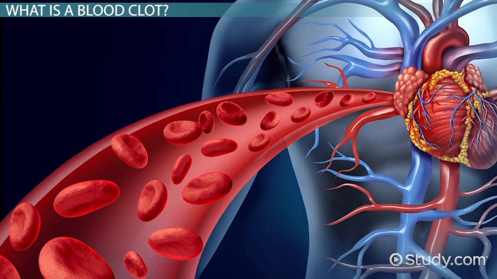 Blood Clot In The Heart Symptoms Signs Treatment Video