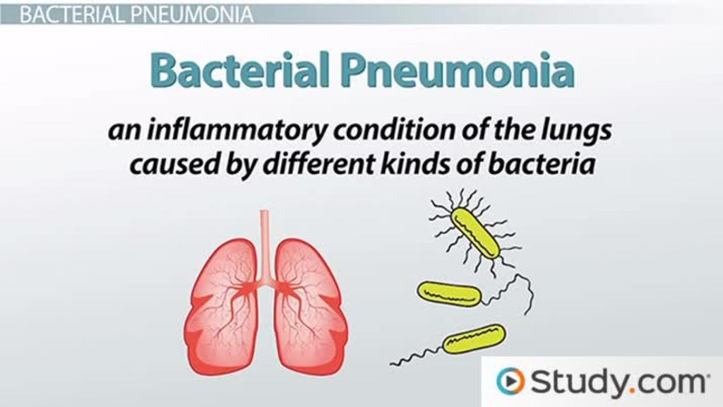Bacterial Pneumonia Causes Signs Treatments Video Lesson Transcript Study