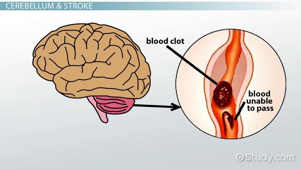 Cerebellar Stroke: Symptoms & Treatment - Video & Lesson Transcript ...
