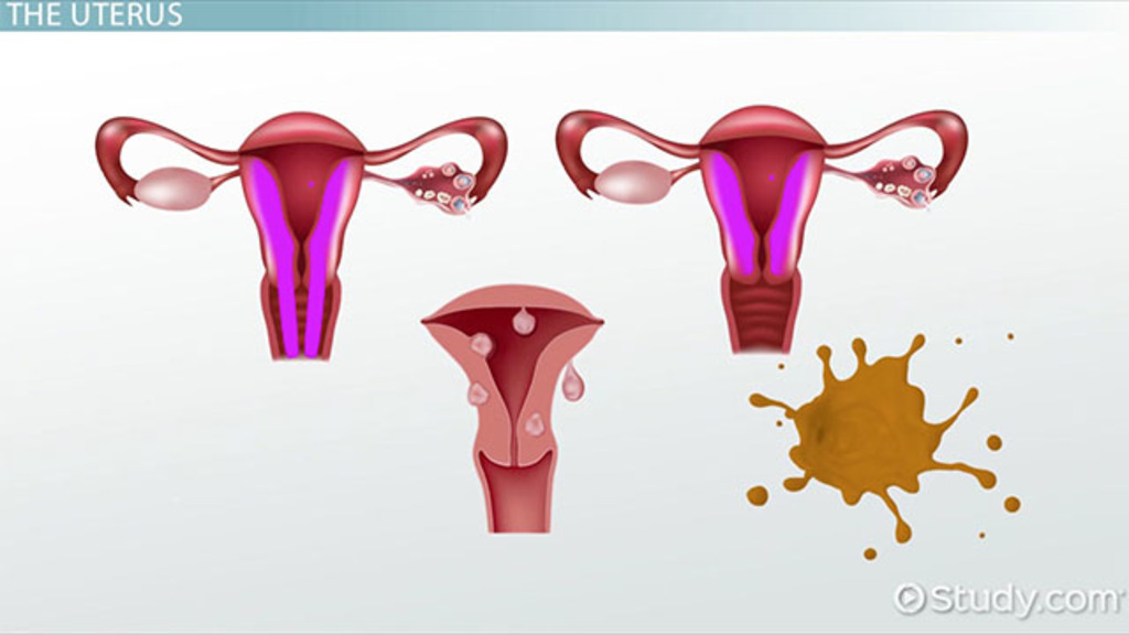 Conditions of the Uterus: Terminology - Video & Lesson Transcript ...