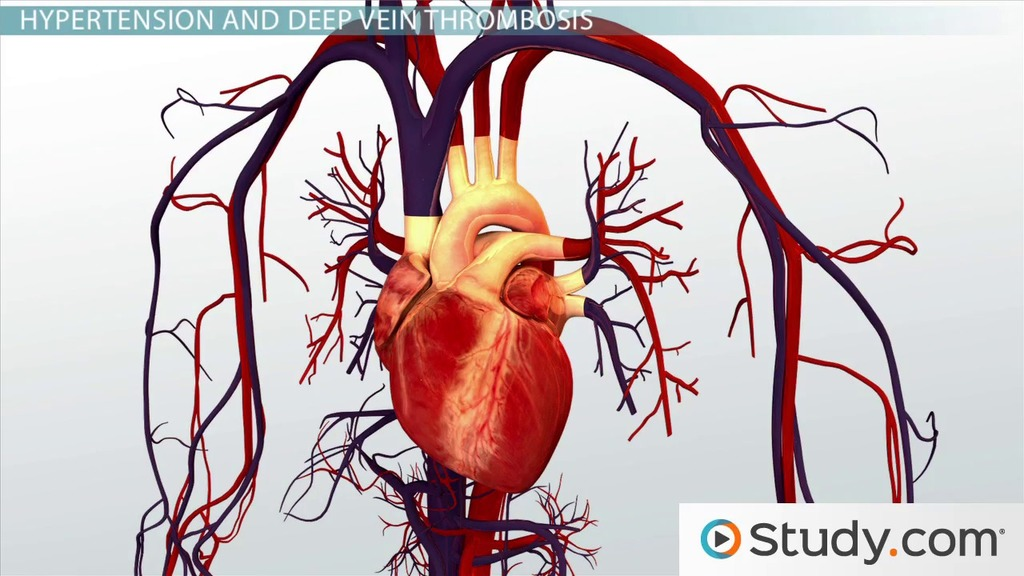 Different Kinds of Cardiovascular Disease: Definitions & Examples ...