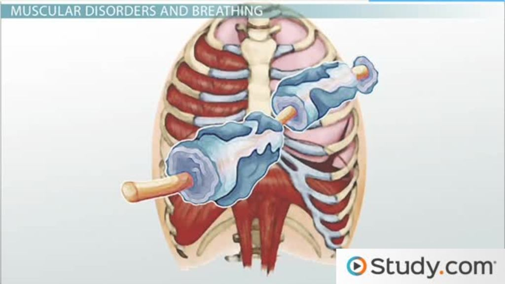Extrinsic Causes of Restrictive Lung Disease - Video & Lesson ...