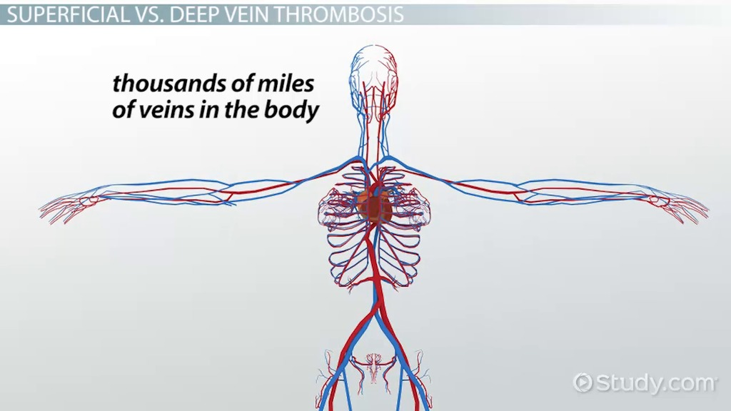 What Is Phlebitis Definition Symptoms Treatment Video
