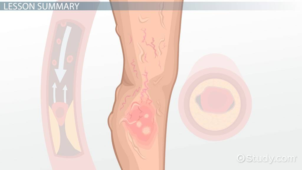 Difference Between Arterial Ulcers Venous Ulcers Video Lesson