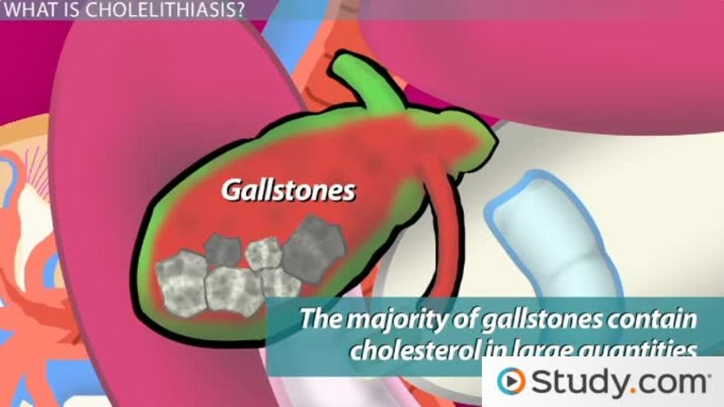Gallbladder Disease Major Causes Consequences And Treatments
