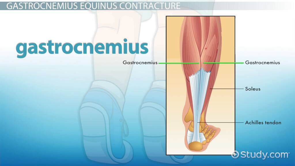 Nursing School Online >> Gastrocnemius Recession: Procedure, Recovery & Complications - Video & Lesson Transcript | Study.com