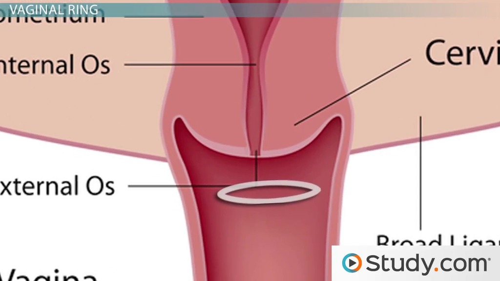Hormonal Methods Of Contraception Contraceptive Patch Ring And Implants Video Lesson Transcript Study Com