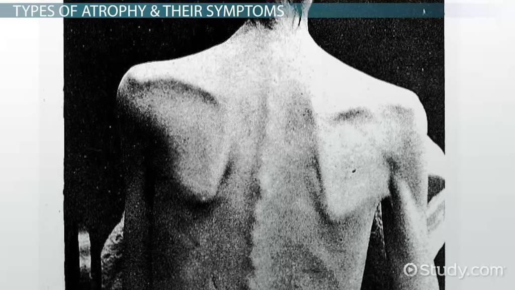 Atrophy Definition Types Amp Symptoms Video Amp Lesson