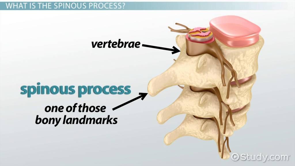Spinous Process: Function & Fracture Treatment - Video & Lesson ...