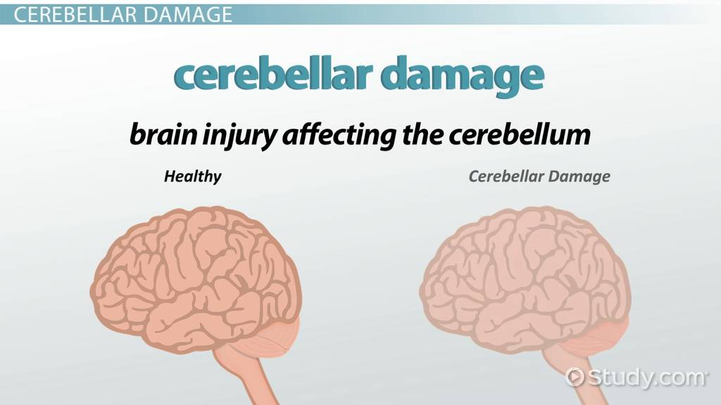 Cerebellar damage symptoms treatment video lesson transcript cerebellar damage symptoms treatment video lesson transcript study ccuart Choice Image