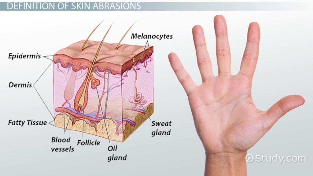 What Is Skin Abrasion? - Definition & Treatment - Video & Lesson ...