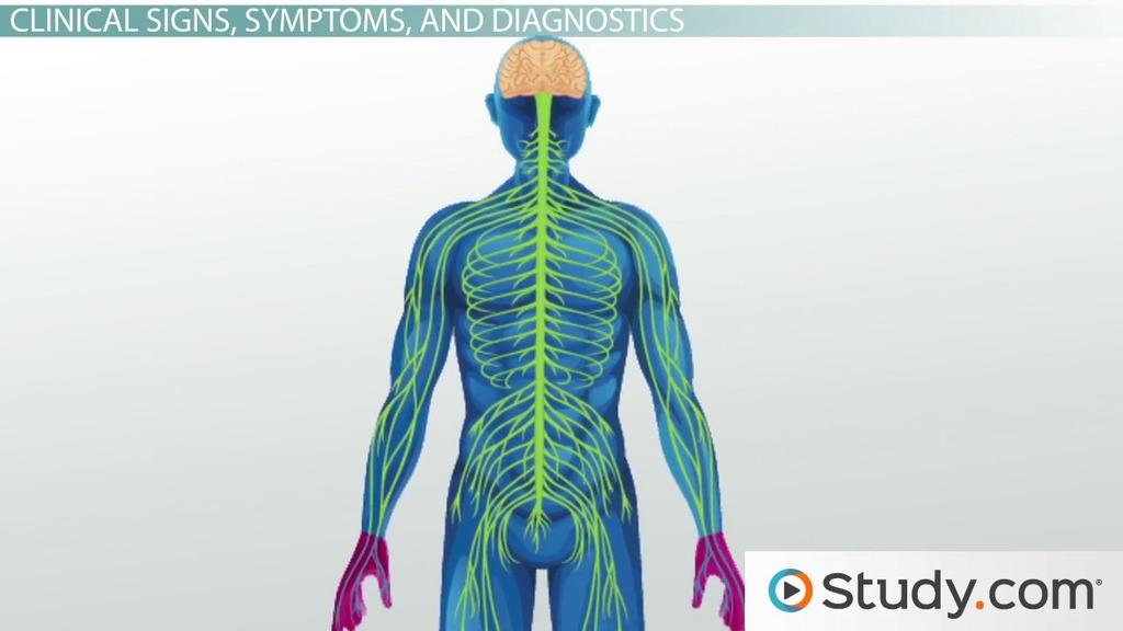 Myasthenia Gravis: An Autoimmune Disorder - Video & Lesson ...