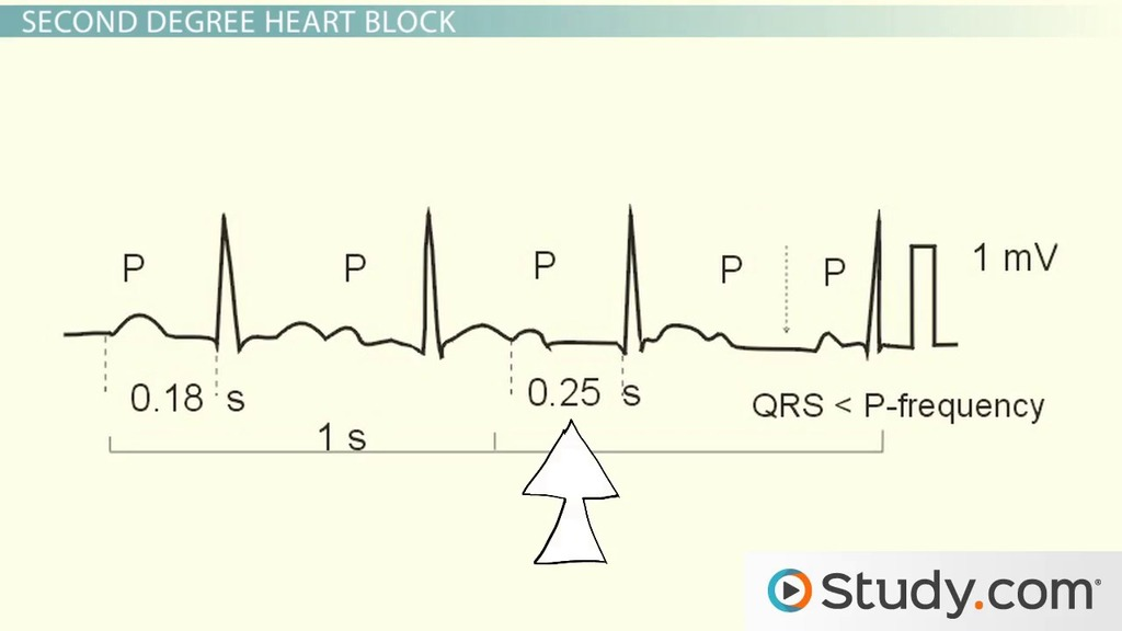 Heart block different types and treatment video lesson heart block different types and treatment video lesson transcript study ccuart Images