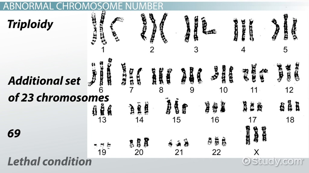Abnormal Chromosome Number Amp Structure Video Amp Lesson