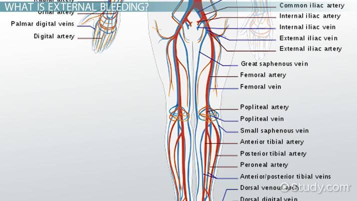 External Bleeding: Definition & Types - Video & Lesson Transcript