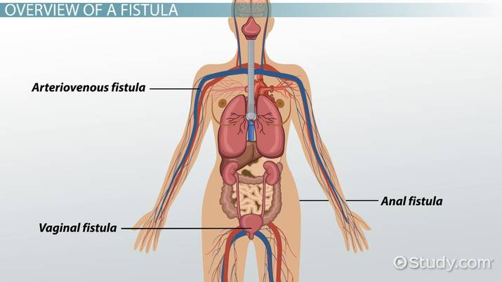 What Is a Fistula? - Definition, Symptoms & Treatment - Video