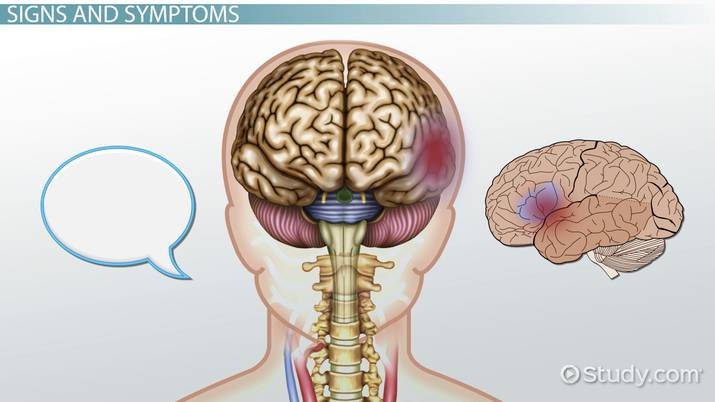 Blood Clot in the Brain: Symptoms, Signs & Treatment - Video