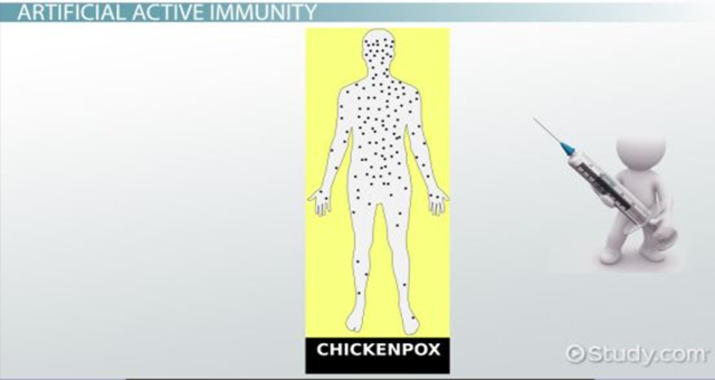 Active Immunity: Definition, Types & Examples