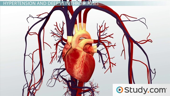 Different Kinds Of Cardiovascular Disease Definitions