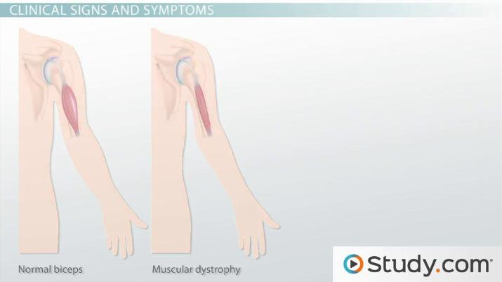 Duchenne Muscular Dystrophy: Affected Locations, Signs ...