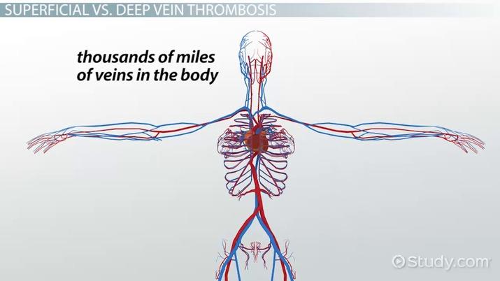 what is phlebitis? definition, symptoms \u0026 treatment video