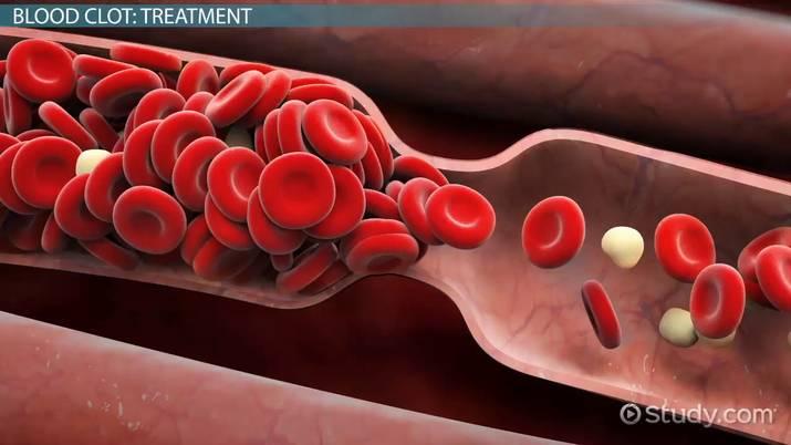 9acbd172db55 Blood Clot in the Foot  Symptoms