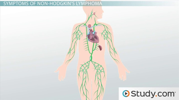Non-Hodgkin's Lymphoma: Definition, Location, Signs