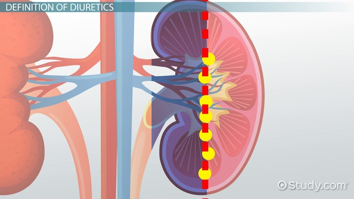 What Are Diuretics? - Definition, Types, Side Effects & Examples
