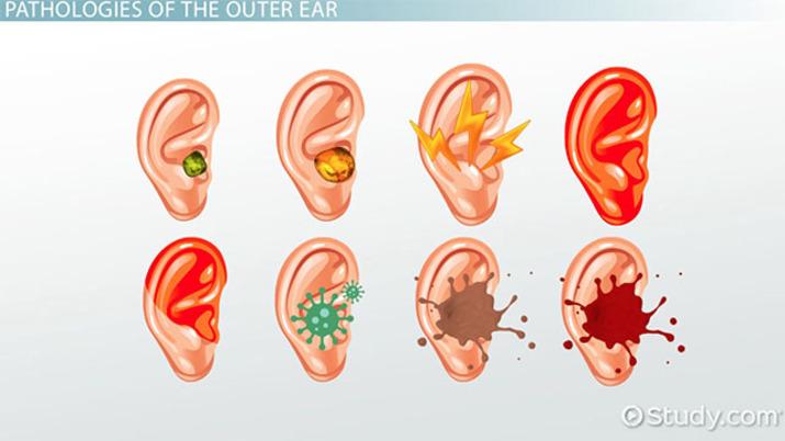 Outer Ear Pathology Terms - Video & Lesson Transcript