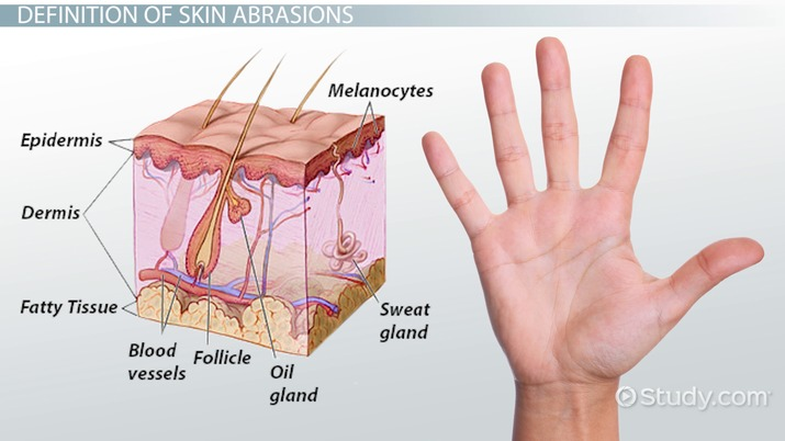psgxfwb40o what is skin abrasion? definition & treatment video & lesson