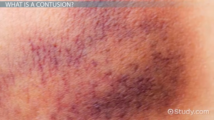 Contusion: Definition, Symptoms & Treatment - Video & Lesson
