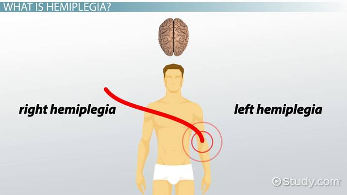 what is hemiplegia definition symptoms treatment video lesson transcript studycom