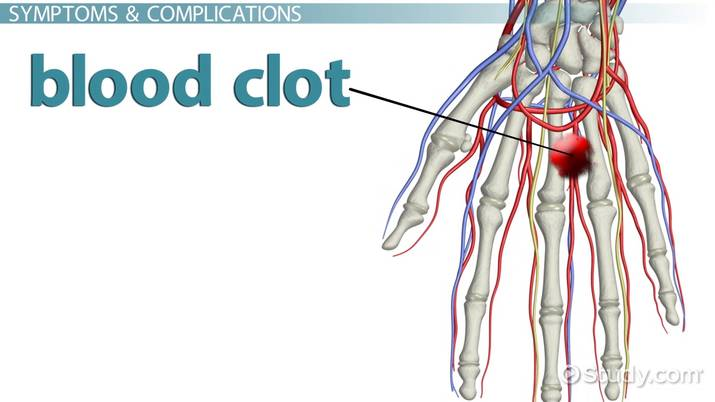 Blood Clot in the Hand: Symptoms, Signs & Treatment - Video & Lesson